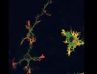 proteina_prion_celular