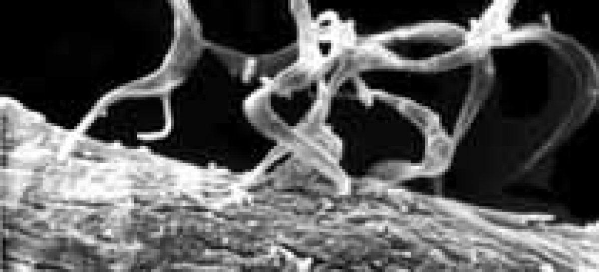 Mortalidade por doença de Chagas preocupa em Pernambuco