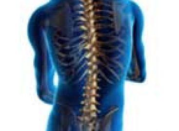 Novo cimento ósseo aprimora tratamentos da coluna para pacientes com osteoporose