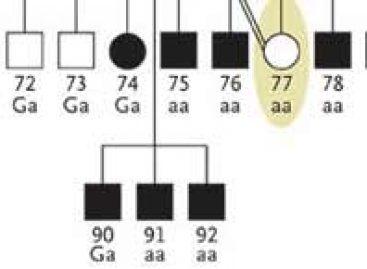 Genes da gagueira