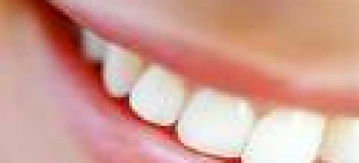 Palestras marcam a Semana da Odontologia 2010