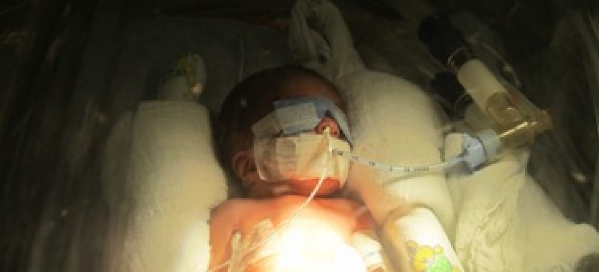 Médico ganha Prêmio Fapema 2012 com pesquisa sobre prematuridade e mortalidade infantil
