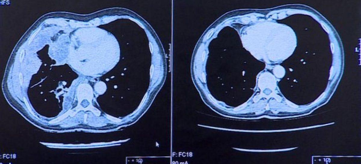 Testes de remédios contra câncer de pele têm resultados 'animadores'