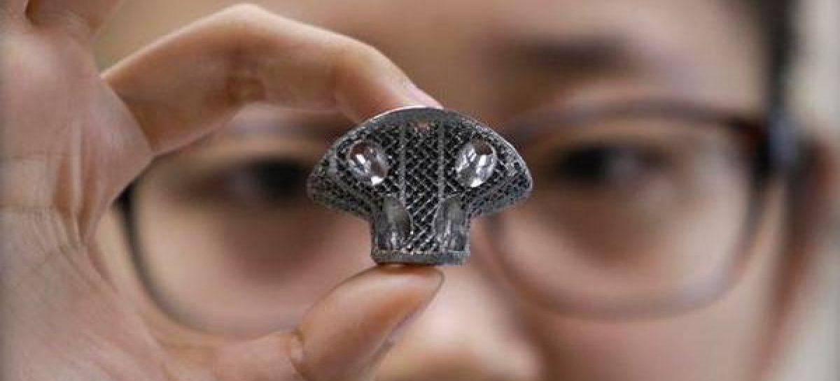 Pela primeira vez, médicos fizeram implante de uma vértebra criada em impressora 3D