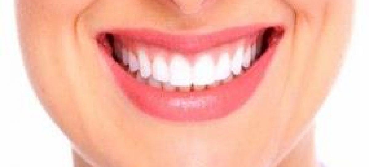 Estudo avalia tipos de tratamento que devem ser realizados após o clareamento dental