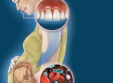 Avaliação clínica periodontal revela associação entre prematuridade e baixo peso