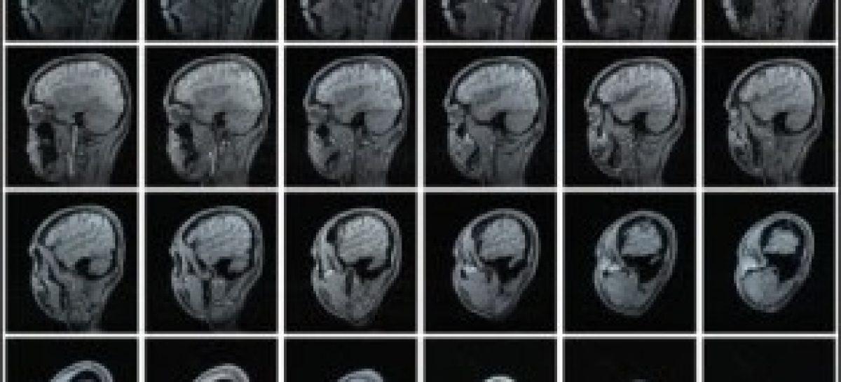 Pesquisa abre caminho para diagnóstico precoce de Alzheimer