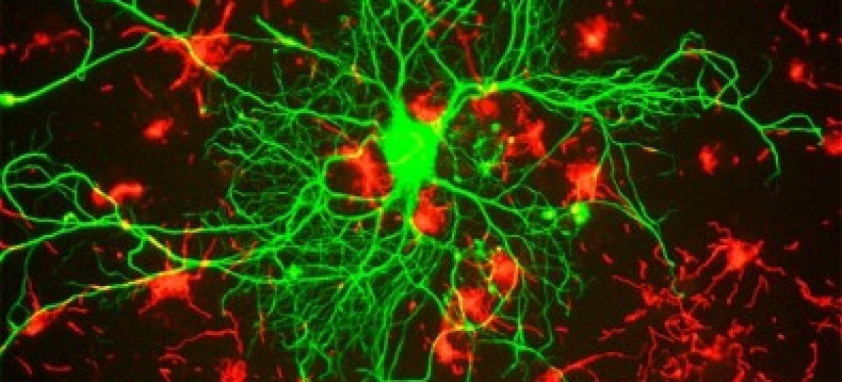 Modelo ajuda a entender como esclerose lateral amiotrófica afeta neurônios