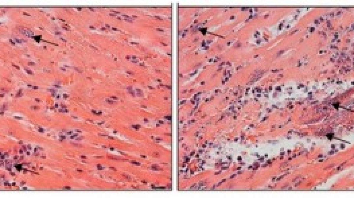 Grupo da USP descreve papel-chave de enzima contra o parasita da doença de Chagas