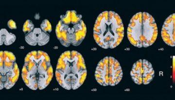 Método para detectar acúmulo de peptídeo ligado ao Alzheimer é validado no Brasil